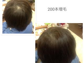 Edu hair art_大人の増毛エクステ