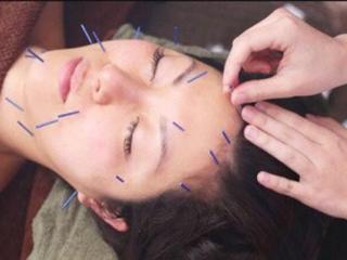 美顔鍼|毎週木曜の13:00~16:00に行われる「美顔鍼」。専門の先生に来てもらい、気軽に鍼を施術してもらえる...
