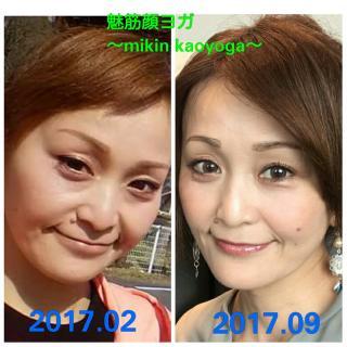 むくみが消えた事で、2回り程小顔になる。顎もシャープになり、体重は2キロ程増加しているのに…顔痩せ効果...